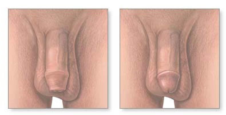 How To Care For Your Circumcised Babycomment Prendre Soin De Votre Fils Circoncis